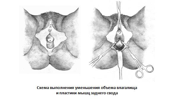 trudno-vhodit-vo-vlagalishe