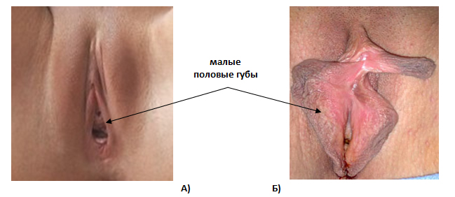 pochemu-temnaya-kozha-vokrug-vlagalisha