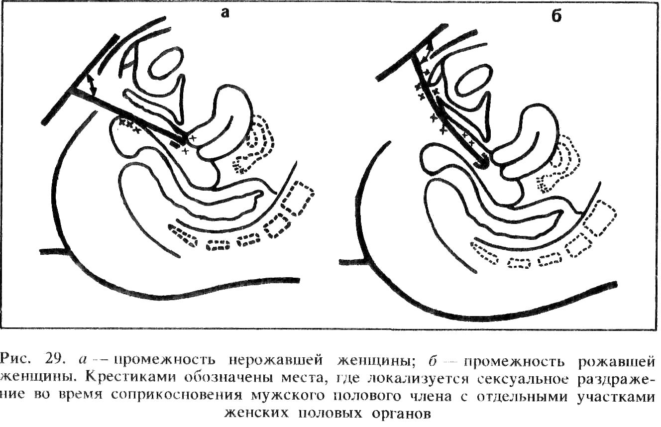 Какого размера прополис во влагалище