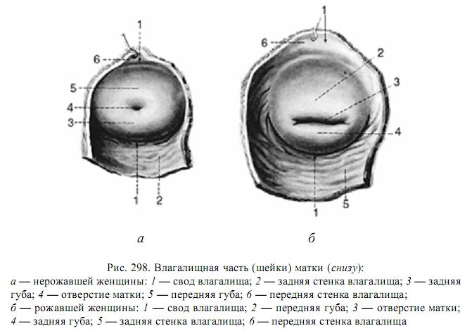 Пузырьки вокруг нижней образующей влагалища